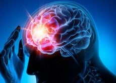 Aneuryzm - tętniak mózgu