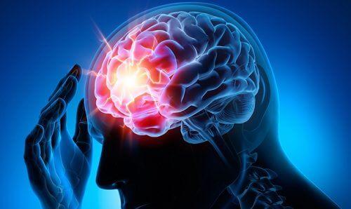 Tętniak mózgu – 7 trików pomagających w profilaktyce