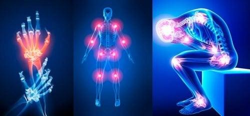 Ból stawów – 7 najczęstszych przyczyn
