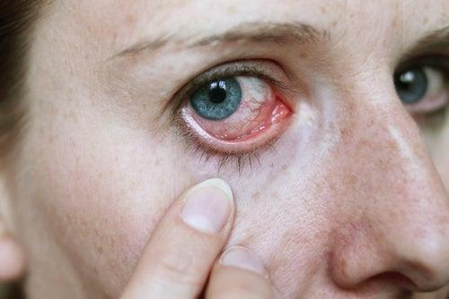 Chore oczy