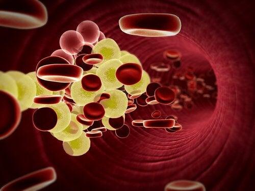 Krążenie krwi a choroby serca
