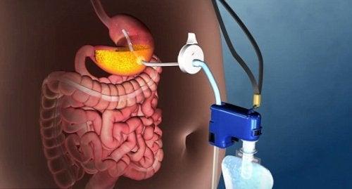 Otyłość leczona nieoperacyjnie – Najnowsza technika