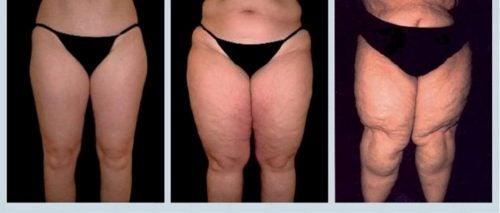 Lipodemia, czyli mało znana choroba grubych nóg
