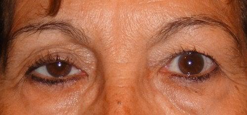 Oczy - opadnięte powieki