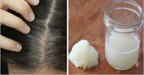 Wypadanie włosów – remedium z cebuli i miodu