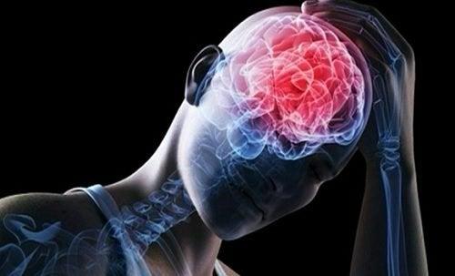 Ból głowy, zator