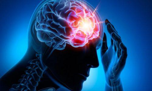Choroby naczyń mózgowych – cztery najczęstsze