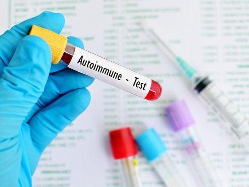 badanie krwi a toczeń rumieniowaty układowy