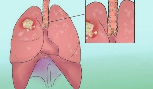 Objawy raka płuc – nie lekceważ ich!