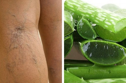 Aloes jest dobrym sposobem na pajączki na nogach.