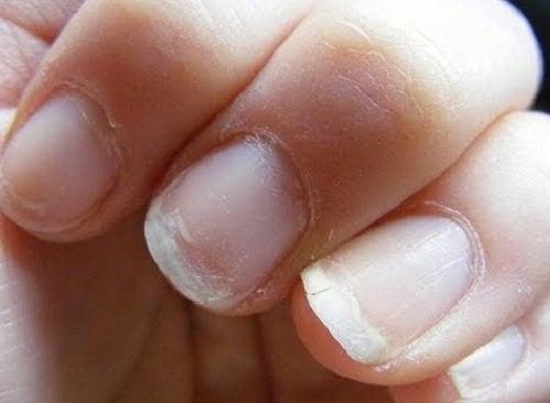 złamane paznokcie