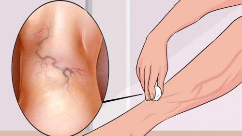 Domowe leczenie żylaków