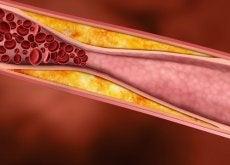 Naczynie krwionośne - wysoki cholesterol