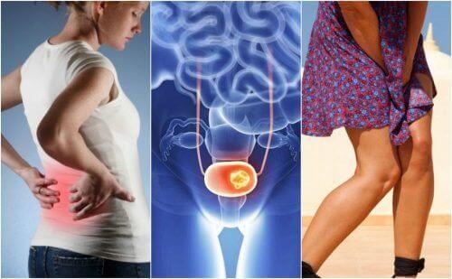 Rak pęcherza moczowego – uważaj na tych 7 objawów