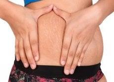 Rozstępy na brzuchu u kobiety
