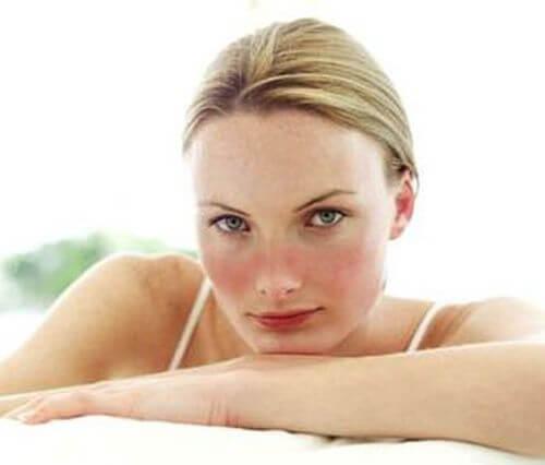 Toczeń rumieniowaty układowy (SLE) – poznaj sposoby leczenia