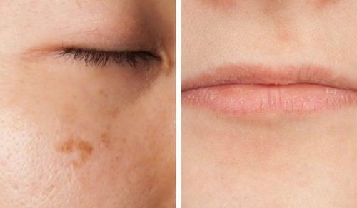 Niedobór witamin – 5 objawów, które wyczytasz z twarzy
