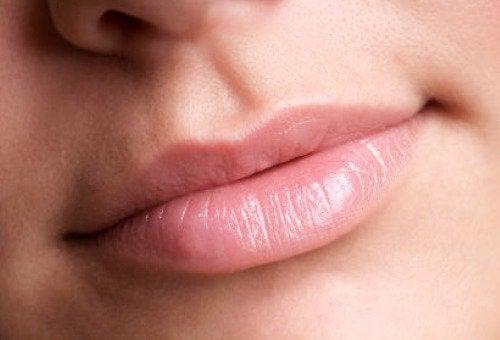 """Usta z wyraźnie zarysowanym """"v"""""""