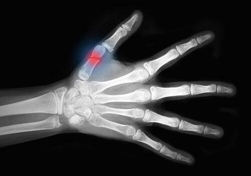 Złamanie palca osteoporoza