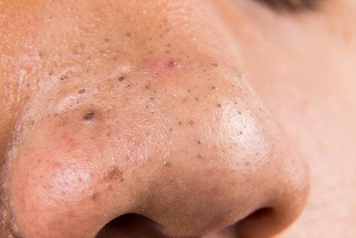 Zaskórniki na nosie