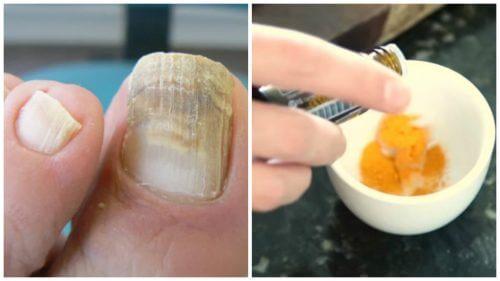 Grzybica paznokci – pozbądź się jej za pomocą kurkumy