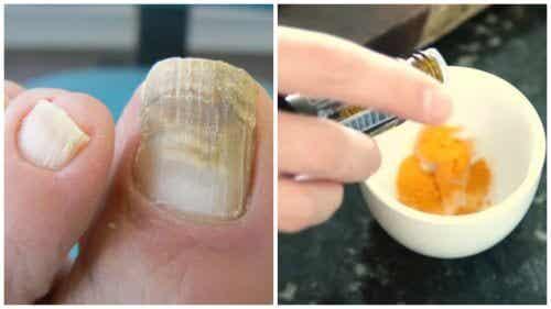 Grzybica paznokci - pozbądź się jej za pomocą kurkumy