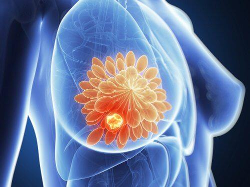 Rak piersi a grillowane mięso – czy istnieje powiązanie?