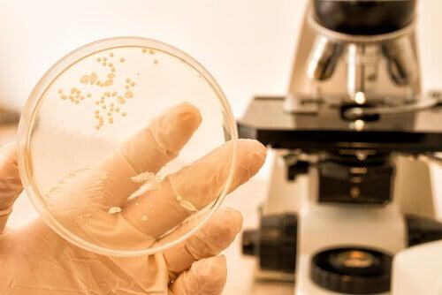 Próbka bakterii a drożdżyca