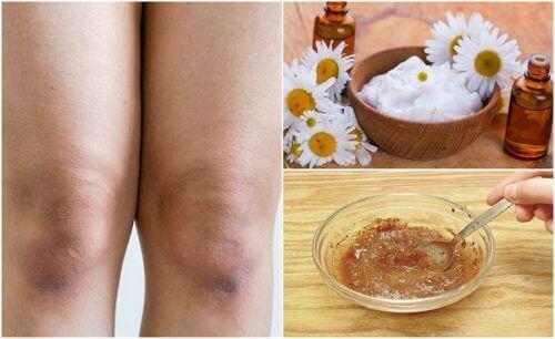 Skóra na kolanach gładsza i jaśniejsza – 5 sposobów