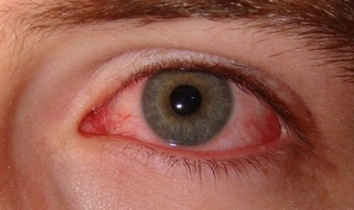 Silnie zaczerwienione oko