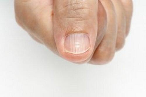 Bruzdy na paznokciach - przyczyny i leczenie