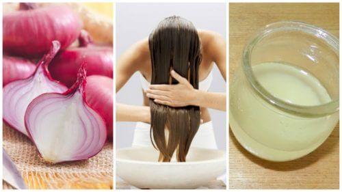Nadmierne wypadanie włosów – zwalcz z cebulą