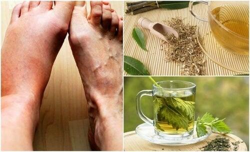 Kwas moczowy - obniż go za pomocą tych 5 domowych remediów