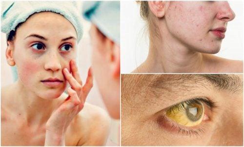 Niedobór substancji odżywczych – 7 znaków na twarzy