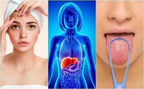 Wątroba obciążona toksynami – 7 objawów