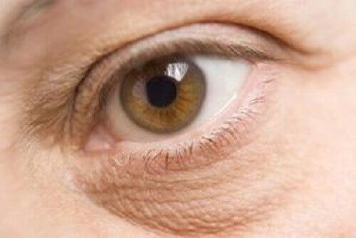 Suchość oka może być następstwem niedobór witamin i minerałów