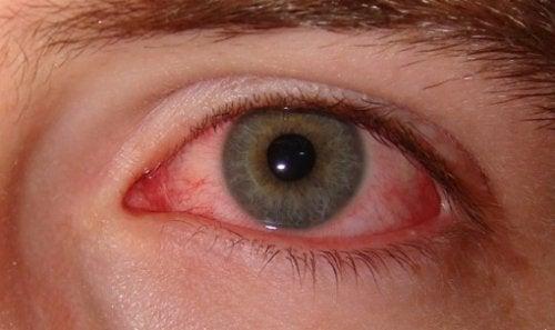 Przekrwione oko A Zespół suchego oka