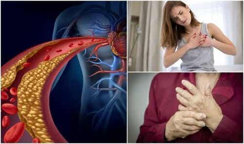 Wysoki cholesterol - sprawdź, czy masz tych 10 objawów