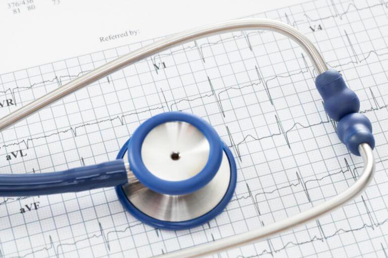 Badanie ekg a palpitacje serca