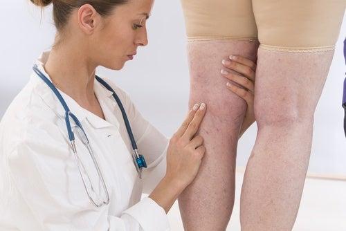 Badanie nóg,