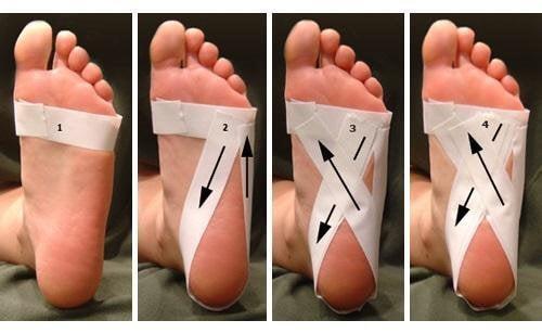 Bandaż na stopy - zespół niespokojnych nóg