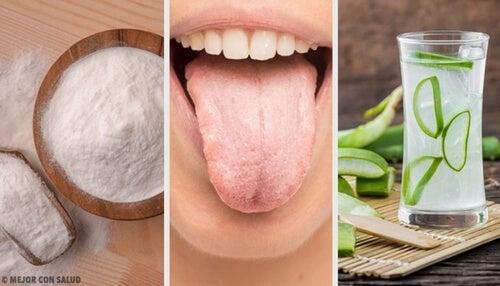 Biały język – 8 skutecznych naturalnych remediów