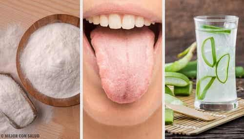 Biały język - 8 skutecznych naturalnych remediów