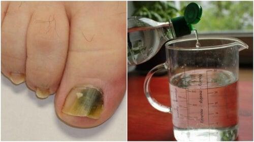 Grzybica paznokci – przepis na remedium na bazie alkoholu