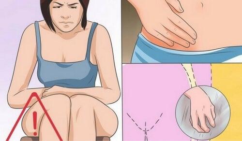 Grzybica pochwy - przyczyny, objawy i leczenie