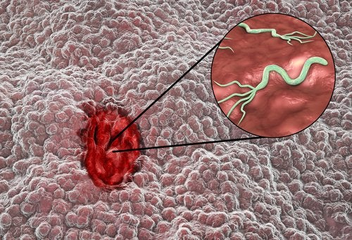 komórki śluzowe omeprazol oslonka zoladka