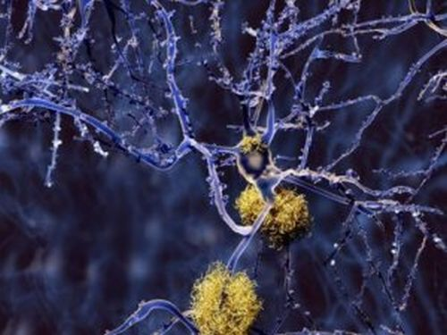 Demencja a Alzheimer i Parkinson - Różne oblicza choroby