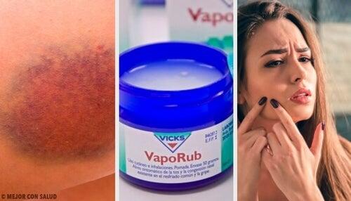 Vicks VapoRub – 11 zastosowań, o których nie miałeś pojęcia