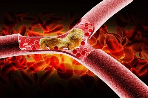 Wysoki cholesterol? Jedz Pokarmy zawierające omega 3