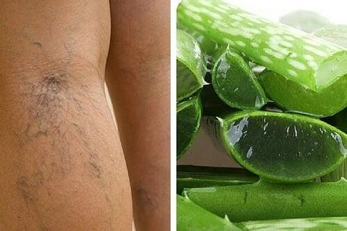 Żylaki – pomoże Ci naturalny środek na bazie aloesu